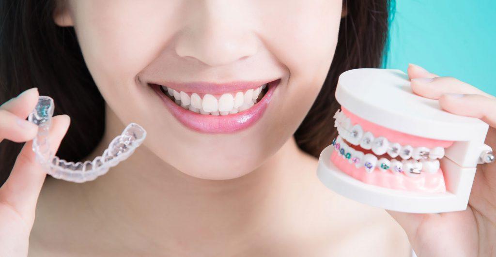 Dental Braces Doctor in Mumbai
