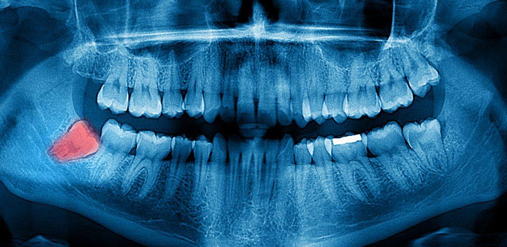 Painless Wisdom tooth removal in Bandra,Mumbai