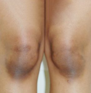 Read more about the article Dark Knees no more   Skin Lightening Treatment For Dark Elbows & Knees   Bliss Skin Clinic   Mumbai