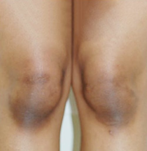 You are currently viewing Dark Knees no more | Skin Lightening Treatment For Dark Elbows & Knees | Bliss Skin Clinic | Mumbai
