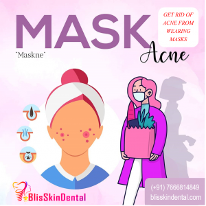 Read more about the article Treatment for Acne from Wearing Masks in Mumbai,India