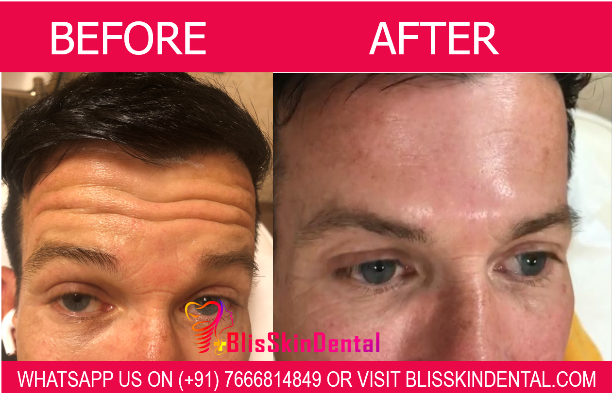 Read more about the article Botox Treatment for Men in Bandra, Mumbai