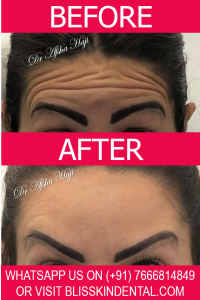 Read more about the article BOTOX Treatment Clinic in Bandra,Mumbai