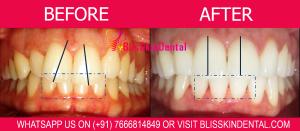 Teeth Whitening Dentist in Bandra