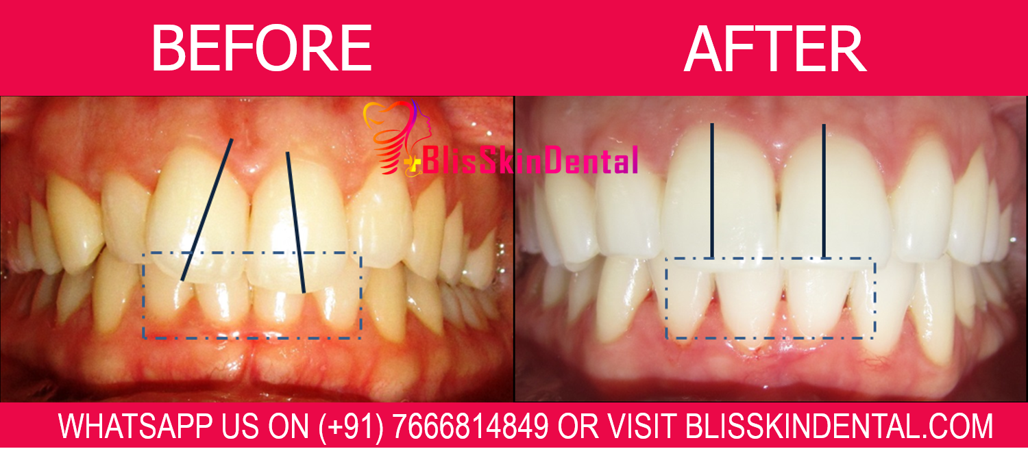 You are currently viewing Teeth Whitening Dentist in Bandra
