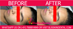 Black Head Removal Treatment in Bandra,Mumbai