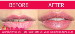 Cost of Lip Filler Treatment in Bandra Mumbai