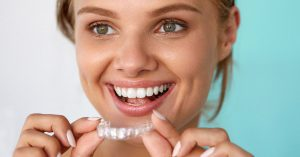 THINGS I WISH I KNEW BEFORE I GOT INVISALIGN