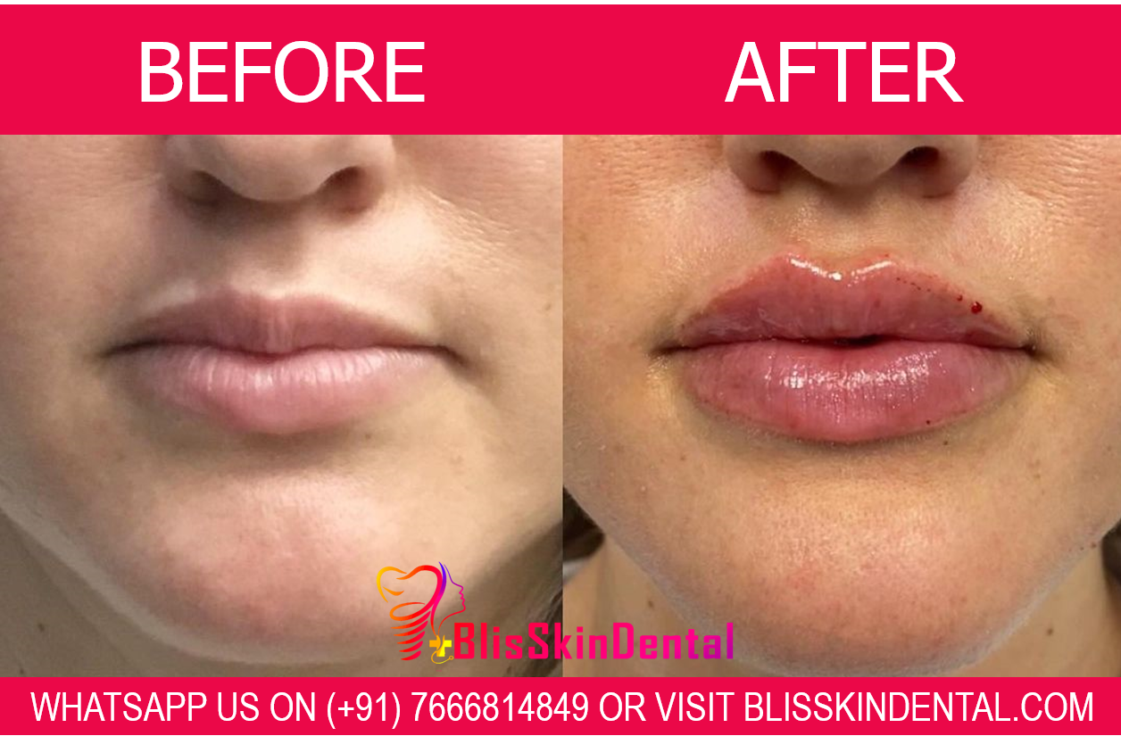 Bliss Lip Filler Clinic | Skin Care Clinic | Botox | Dermal Filler | Chin Filler | Hydrafacial | Eyebrow Microblading | Chemical Peels | Acne Scar | Acne