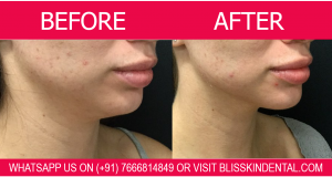 Double Chin Removal 100% Assured Result by Skin Specialist in Bandra,Mumbai