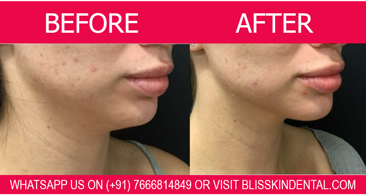 You are currently viewing Double Chin Removal 100% Assured Result by Skin Specialist in Bandra,Mumbai