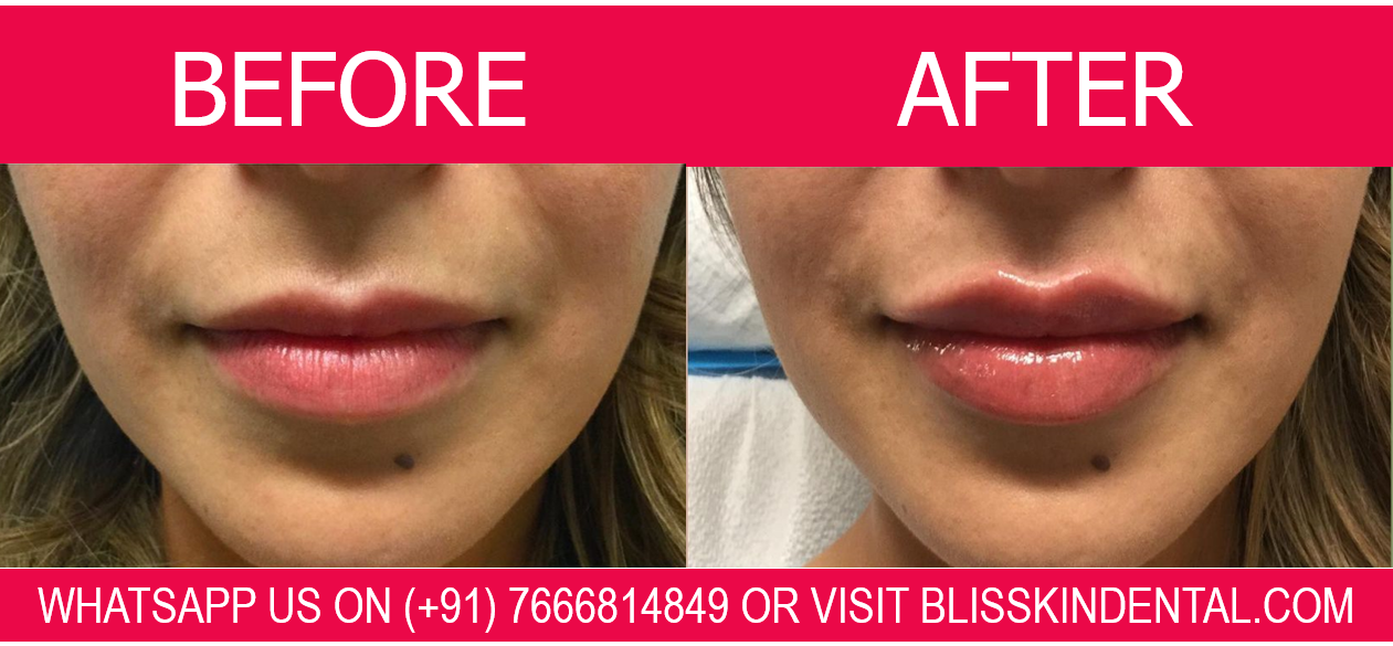 Read more about the article Dermal fillers in Mumbai. For improvement of facial aesthetics