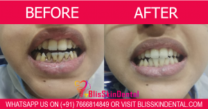 Benefits of Dental Cleanings explained by Orthodontist in Bandra