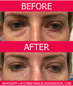 Read more about the article Everything You Need to Know About Under Eye Filler for Dark Circles