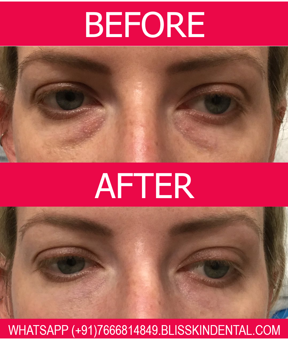 Everything You Need to Know About Under Eye Filler for Dark Circles