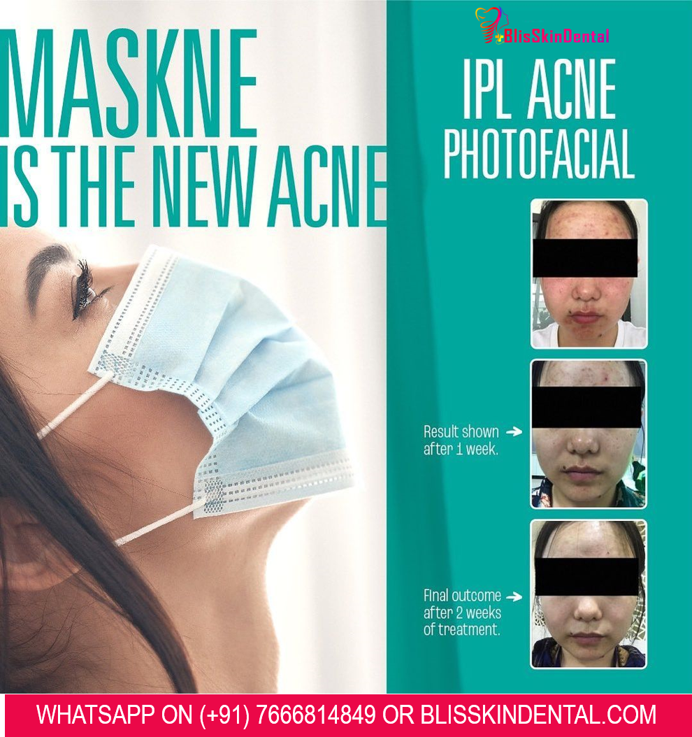Read more about the article Acne Treatment for pimples caused by Wearing Mask