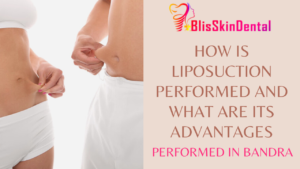 How is Liposuction done watch live surgery video at Bliss Clinic in Bandra Mumbai