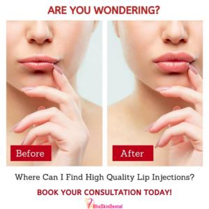 Lip Augmentation in Mumbai