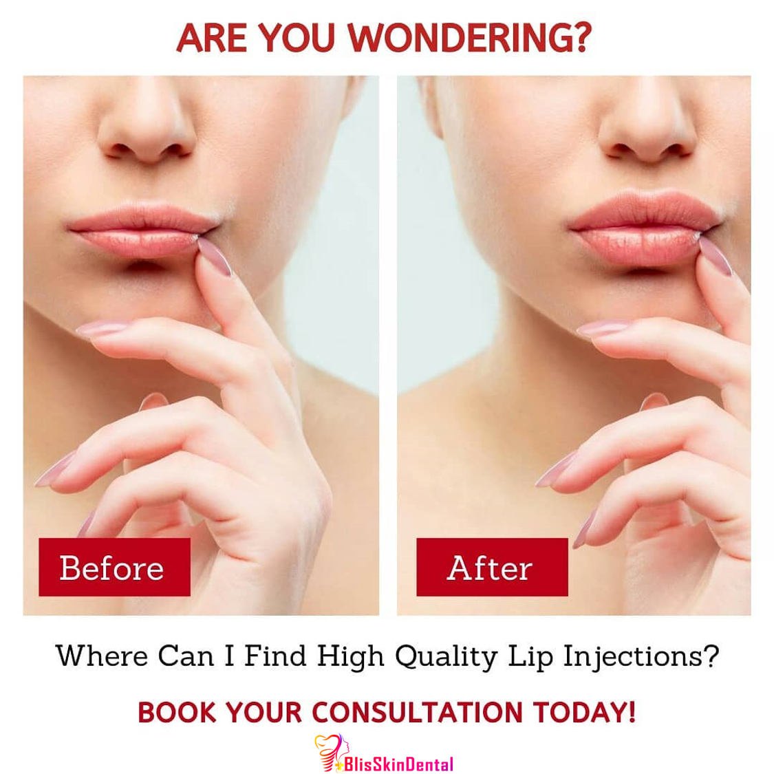 Read more about the article Lip Augmentation in Mumbai