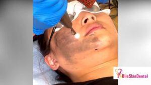 Skin Treatment Clinic in Bandra