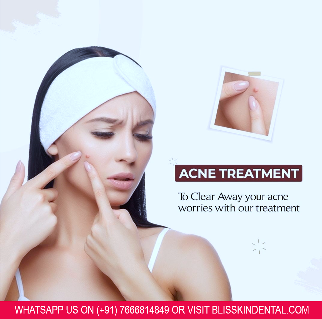 Read more about the article Acne Treatment in Bandra, Mumbai