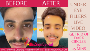 Read more about the article Under-Eye Fillers for Dark Circle Removal | Under Eye Fillers in Mumbai | Dermal Fillers in Bandra