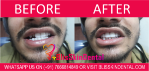 Best Dentist in Bandra