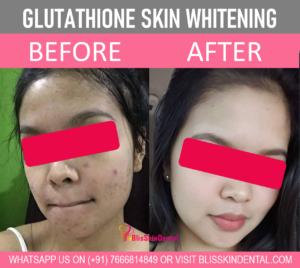 Skin Whitening Treatment in Bandra, Mumbai