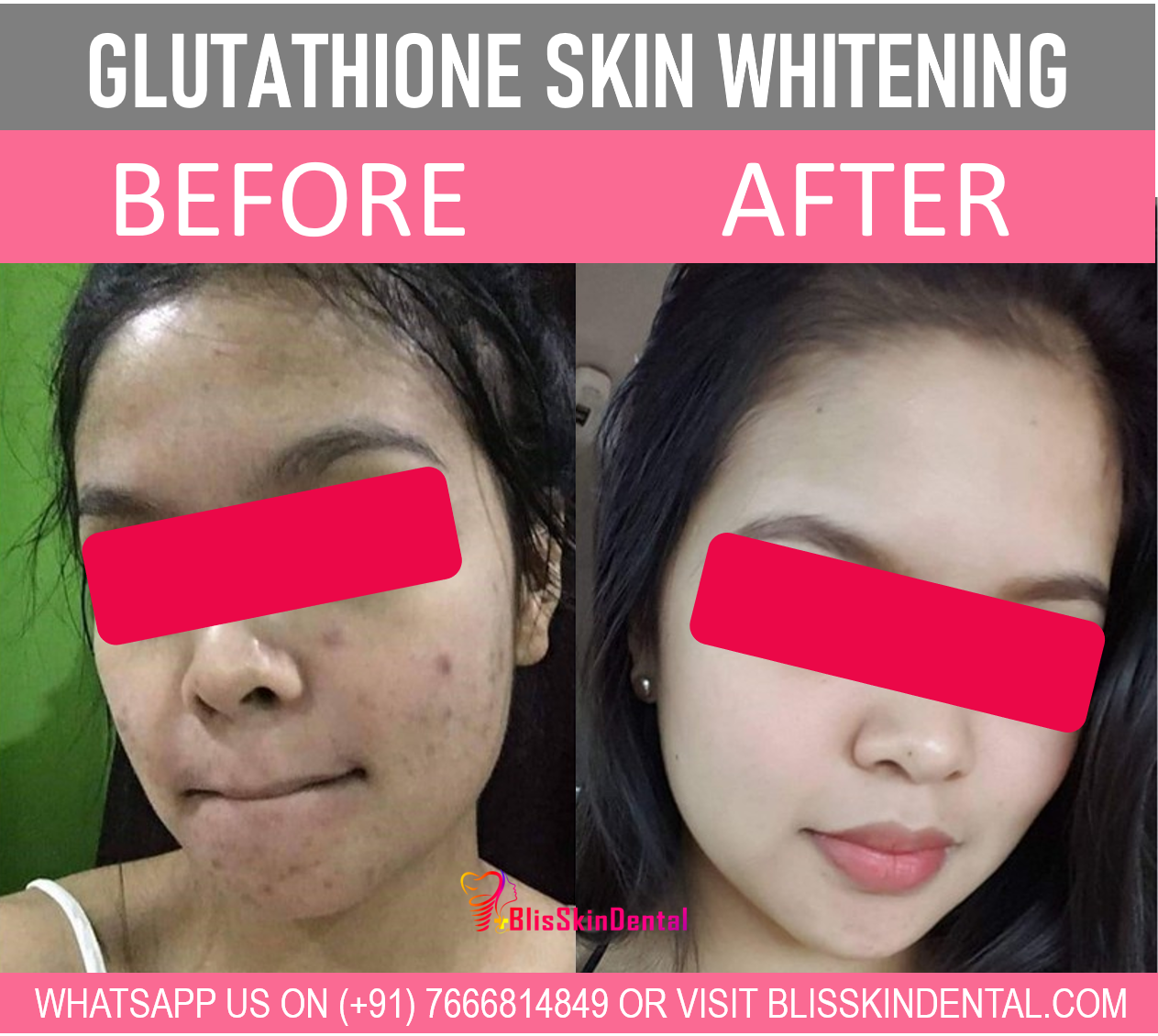Read more about the article Skin Whitening Treatment in Bandra,Mumbai