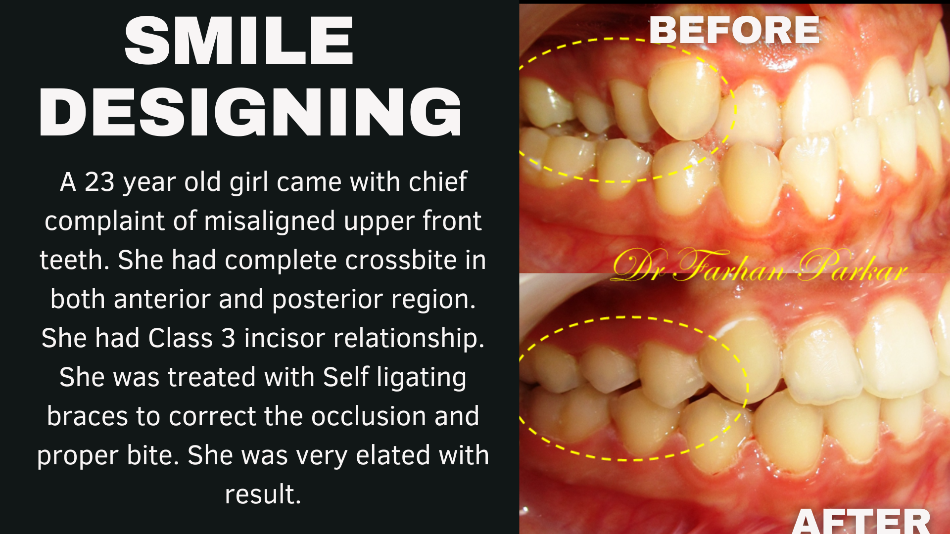 Read more about the article Braces and Aligners for teeth straightening in Bandra, Mumbai